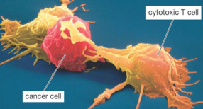 cancer_cell